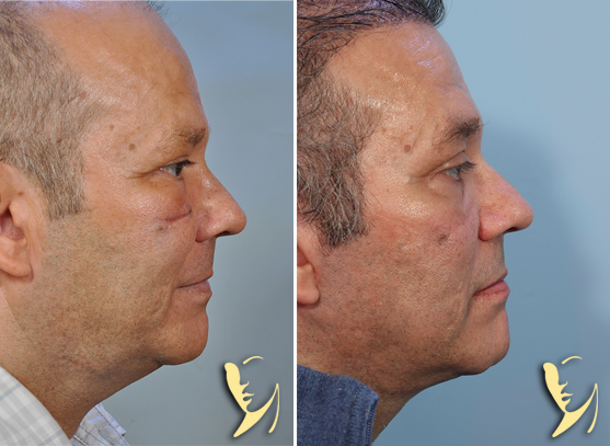 lower-facelift-before-after-scar-revision