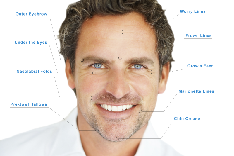 men-injectables-RFPS