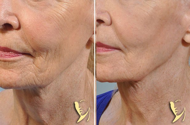 profound-lift-3-skin-tightening