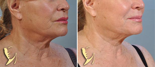 profound-skin-tightening-2a-1