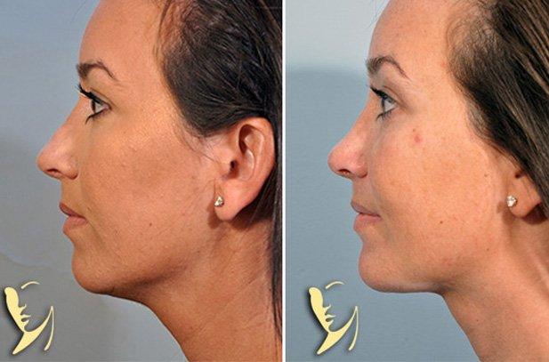 revision-rhinoplasty-chin-implant-liposuction-2
