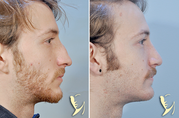 rhinoplasty before after 38