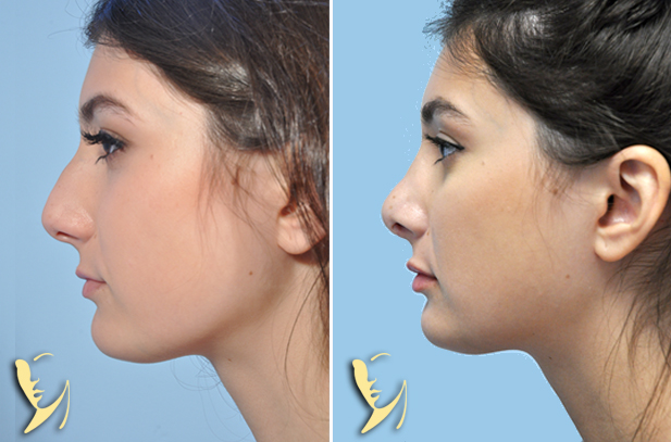 rhinoplasty-before-after-60