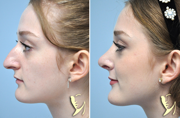 rhinoplasty-before-after-70