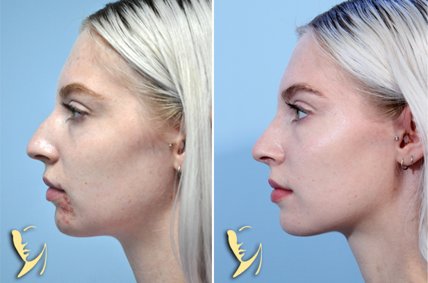 rhinoplasty-before-after-80