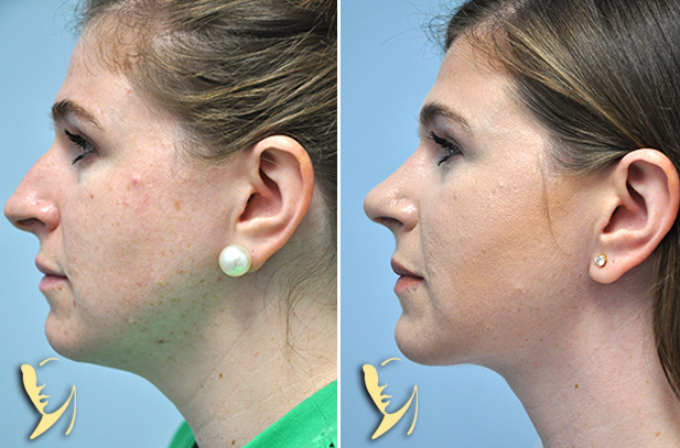 rhinoplasty-platysmplasty-before-after-39
