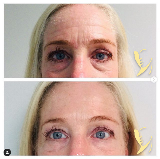 undereye-facial-fillers-2