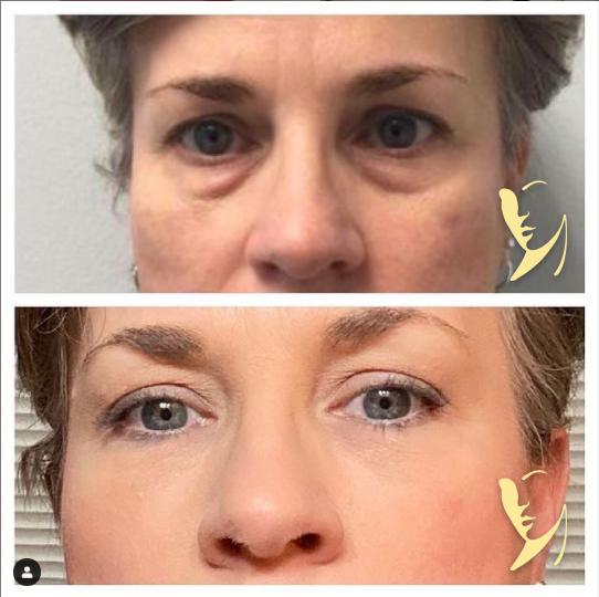 undereye-facial-fillers-3