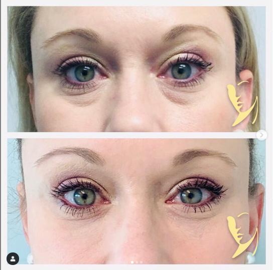 undereye-facial-fillers-4