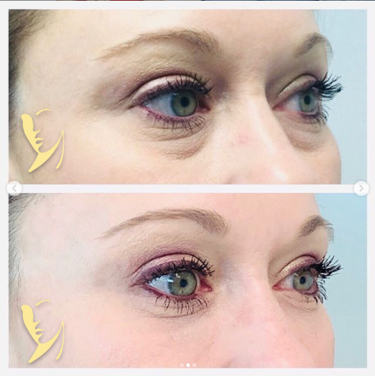undereye-facial-fillers-5