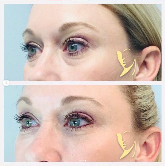 undereye-facial-fillers-6