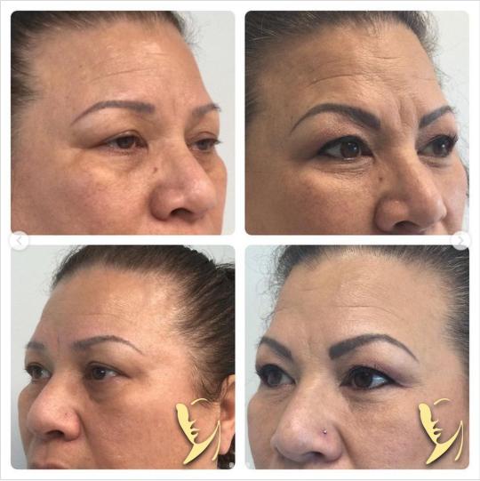 undereye filler + wrinkle relaxing 10