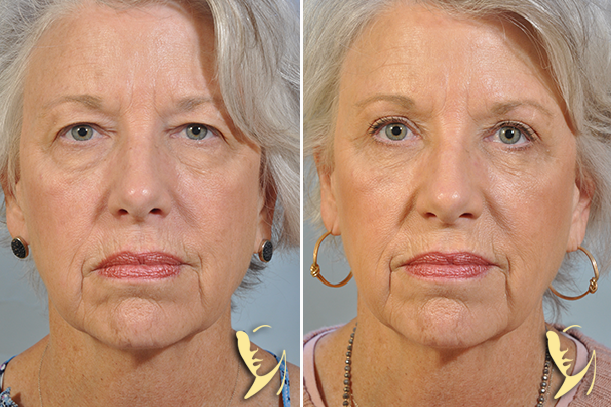 upper and lower eyelid surgery 34