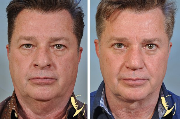 upper and lower eyelids, facelift